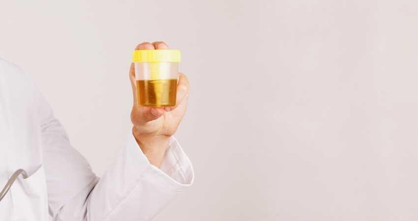 urine clour